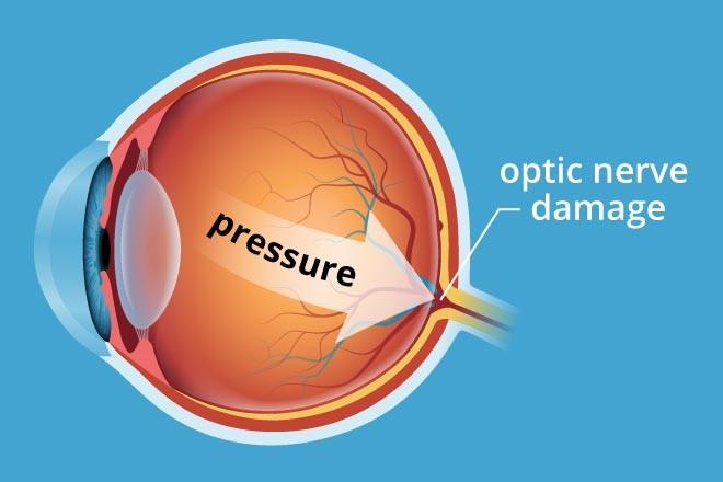 Glaucoma Condition