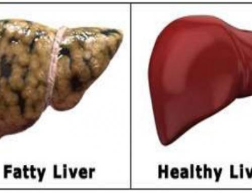 Fatty Liver : The next enemy